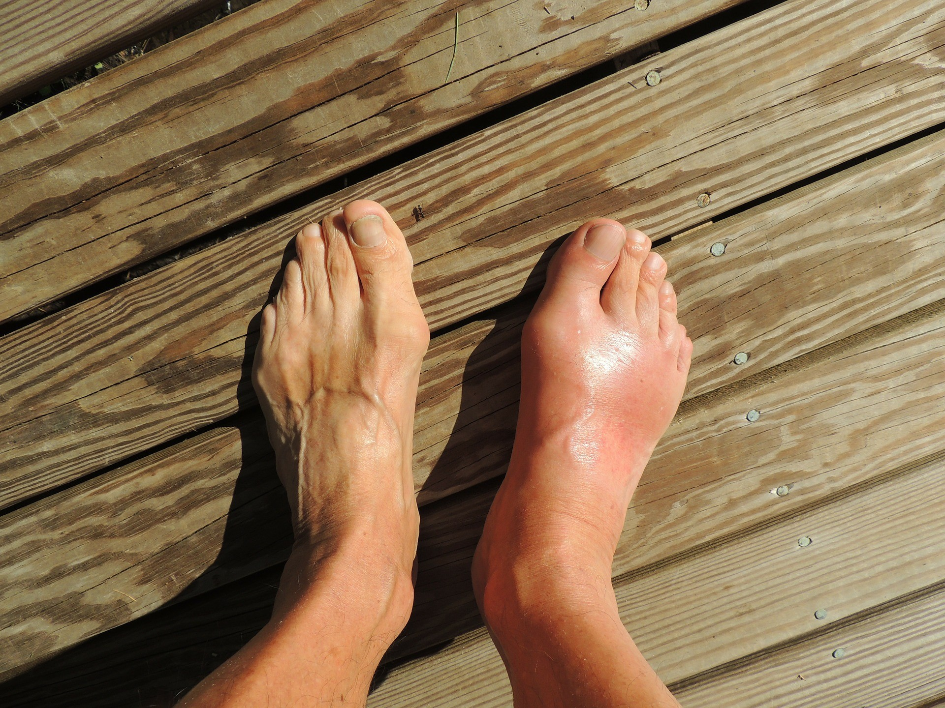 Fungal Infection Treatment