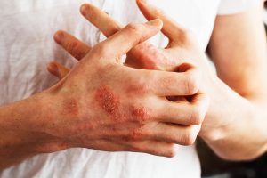 Man Scratching Dry Flaky Hands caused by Eczema