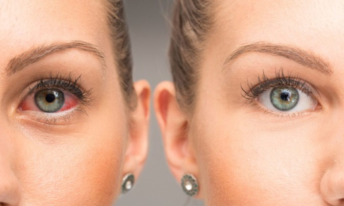 Stop Dry Eyes Damaging Your Eyesight With Hylo Care