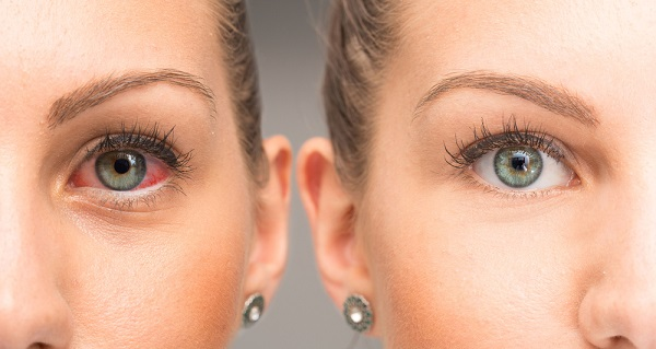 Red eye before and after the use of Hylo Care eye drop