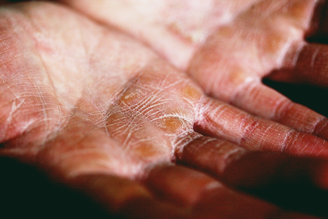 how to stop eczema itching